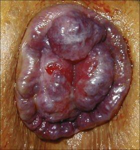 Hémorroïdes et fièvre : soigner une crise