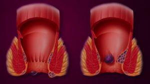 Solutions médicamenteuses contre les hémorroïdes