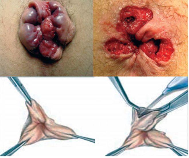 L'hémorroïdectomie classique