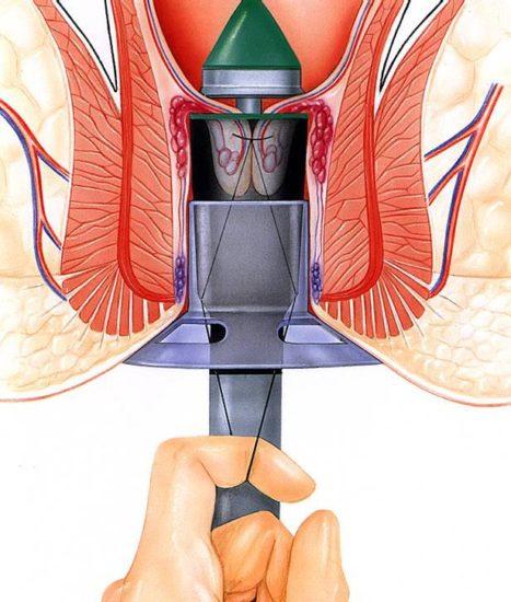 L'hémorroïdopexie ou la technique Longo