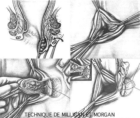 L'intervention de Milligan Morgan